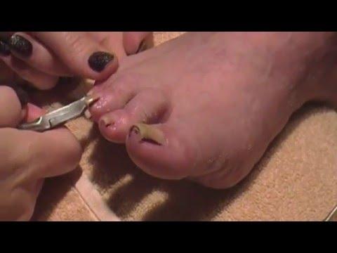 Pedicure Tutorial on Elderly Woman Big Toenail Buildup Cleaning