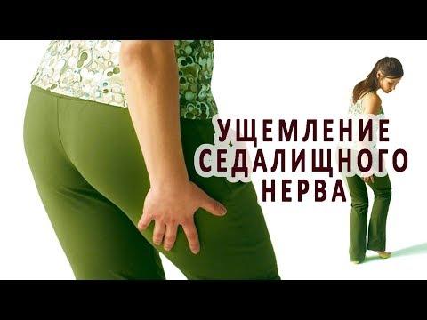 Болит нога защемление нерва