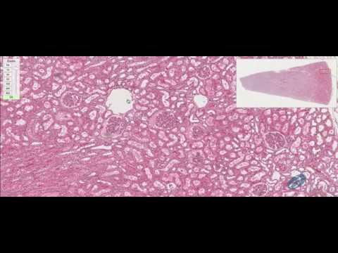 Polipectomía de Pólipo del Colon Descendente from YouTube · Duration:  9 minutes 21 seconds