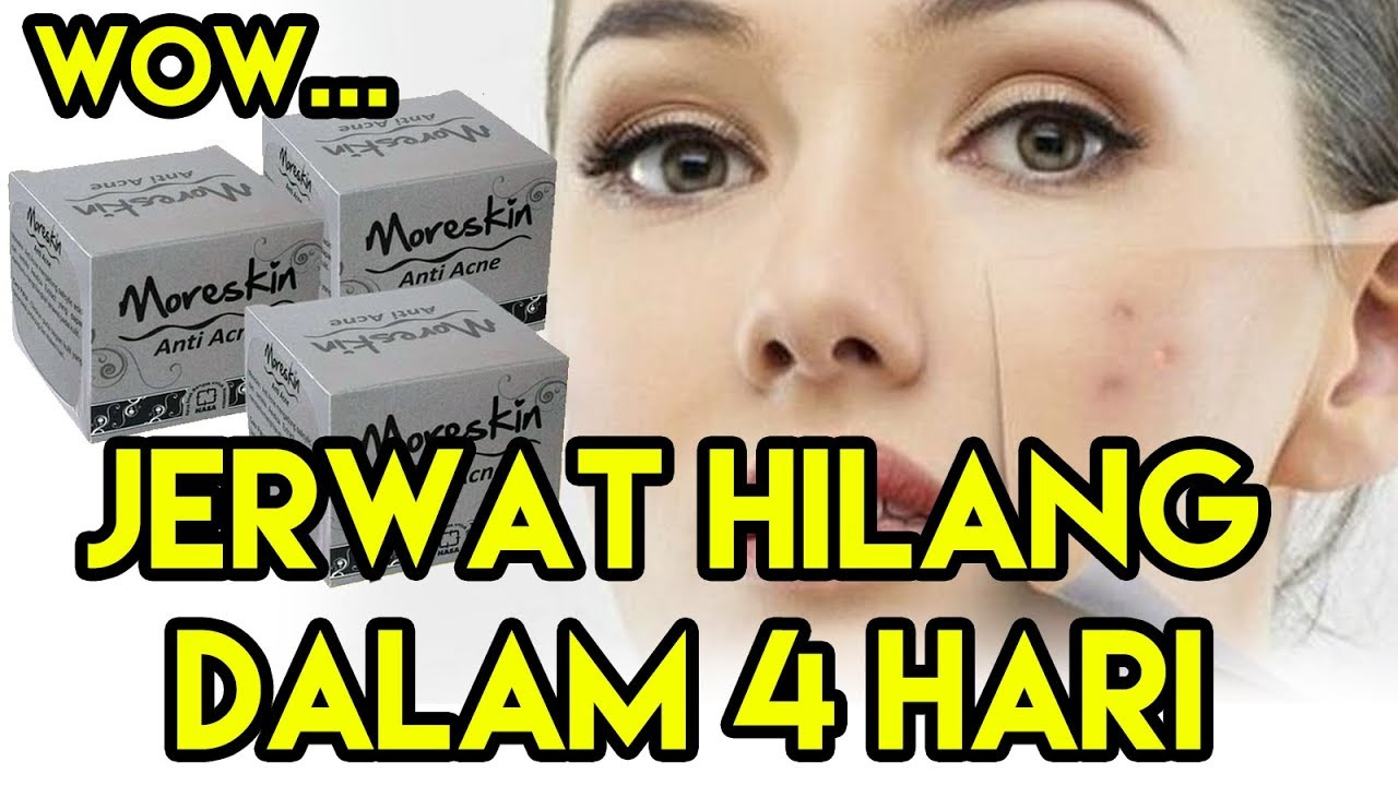 Moreskin Anti Acne Obat Jerawat Herbal Alami Paling Ampuh ...