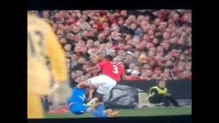 """Patrice Evra Karate Kick"" vs A-League All Stars Injury"