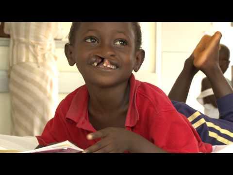 CBM-Kinderpatenschaft - Freds erfolgreiche OP