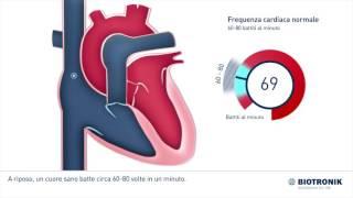5. Patient Education Ventricular Fibrillation Italian
