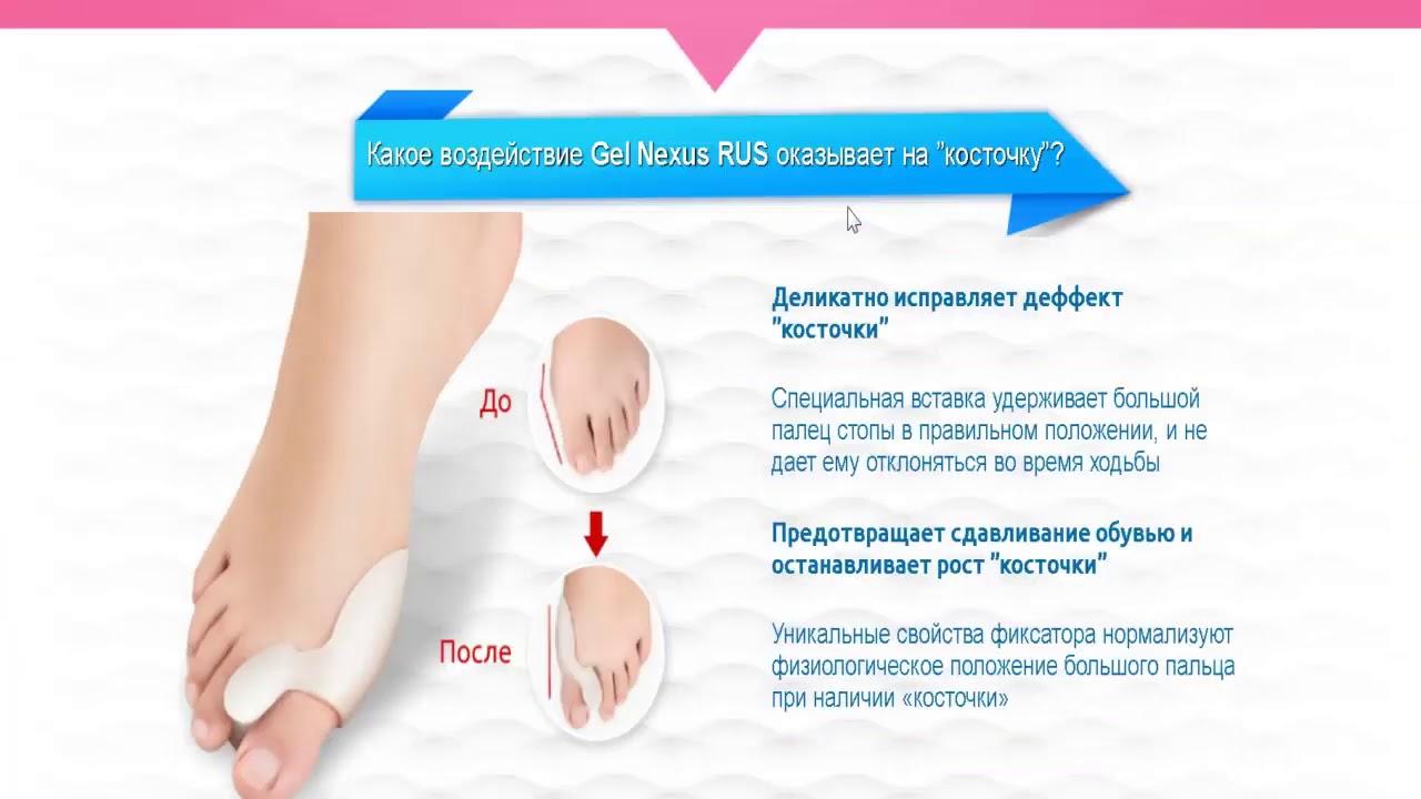 Gel Nexus от косточки на ноге в Чистополе
