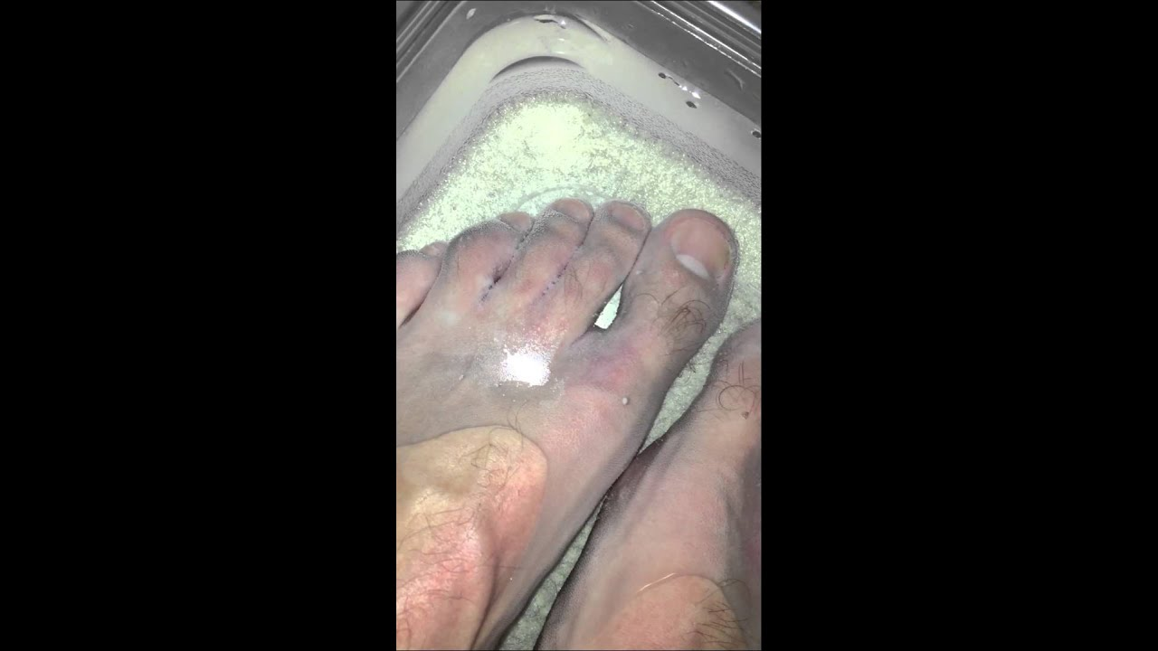 Hydrogen Peroxide with Athletes Foot - YouTube