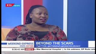 Beyond the scars: Njoki shares her childhood tale