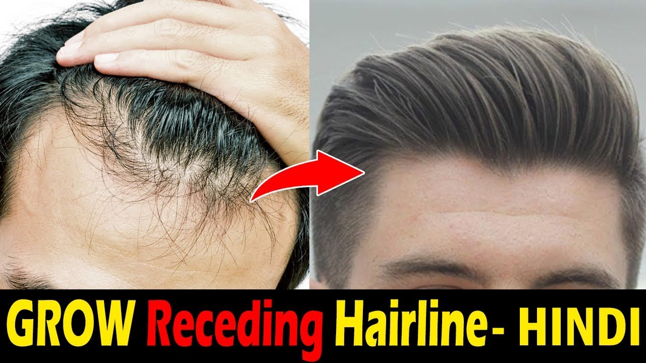 How To Stop Hairline Receding Hair Loss Naturally Receding