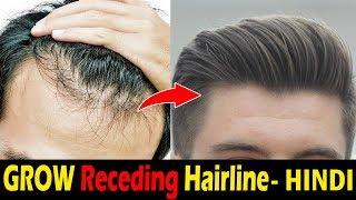 How To Stop Hairline Receding / Hair Loss Naturally | Receding Hairline Problem Men | Asad Ansari