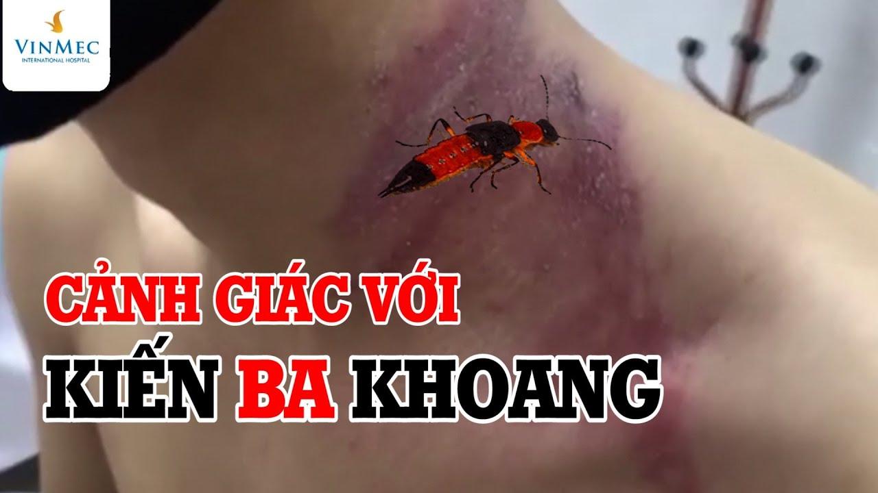 Cảnh giác với kiến ba khoang  BS Nguyễn Thanh Vân BV Vinmec Phú Quốc