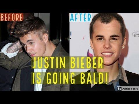 OMG JUSTIN BIEBER IS BALDING AND LOSING HAIR!