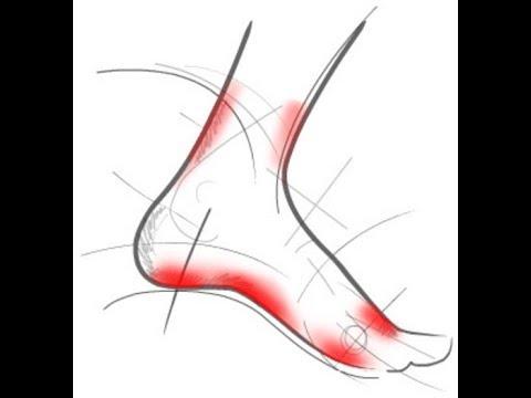 Обувь и стельки при плоскостопии