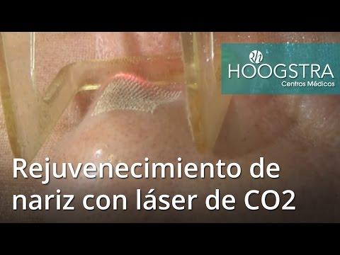 Rejuvenecimiento de nariz con láser de CO2 (16143)