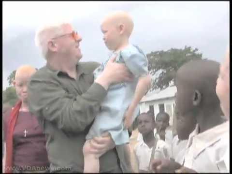 Canadian Assists Albinos in Tanzania
