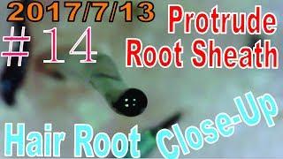 Hair Root / Root Sheath Close Up #14【Protrude Hair Root Sheath】