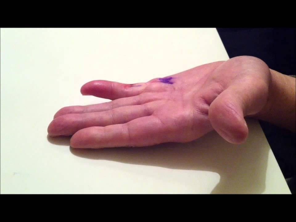 springfinger behandling