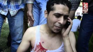 اصابة احد مؤيدى مرسى بطلق خرطوش بمصطفى محمود