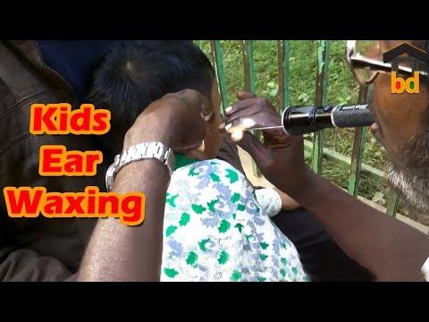 ►Kids on Street Ear Cleaning II Short Time Ear Wax Removal