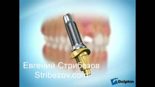 Имплантация и протезирование в Санкт-Петербурге(, 2017-06-05T13:39:55.000Z)