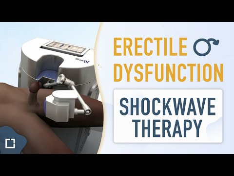 linear-shockwave-therapy-(lswt)-for-erectile-dysfunction.-doctor-natalio-cruz.-andromedi.-sevilla