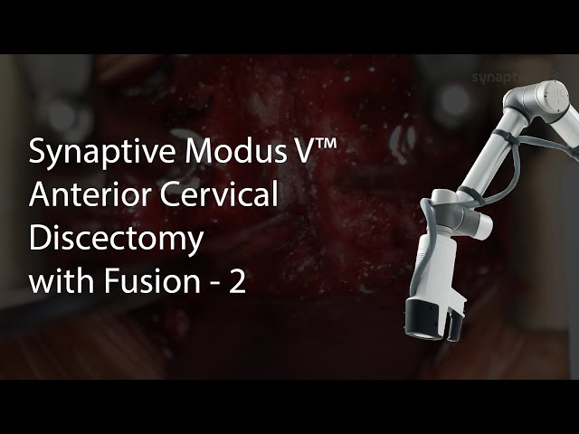 Synaptive Modus V™ - Anterior Cervical Discectomy with Fusion - 2
