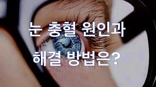 건강정보 - 눈 충혈 원인과 해결 방법 / 충혈된 눈 …