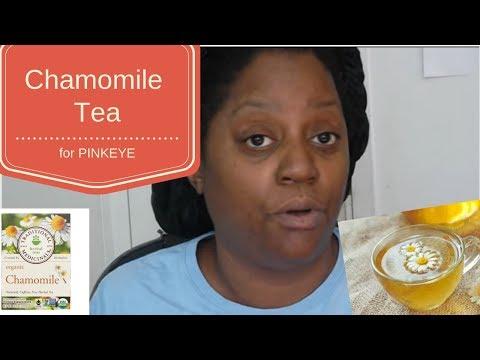 CHAMOMILE TEA TO CURE PINK EYE!! Aka CONJUNCTIVITIS