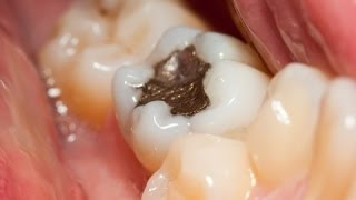 What is tooth Decay, How To Get Rid Of A Toothache, Pain In Tooth,  oralbglobal