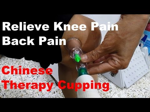 Self Treatment to relieve knee pain, lower back pain, shoulder pain - Chinese Therapy Cupping