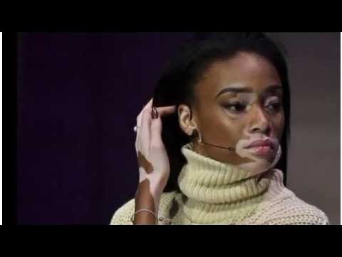 Winnie Harlow on vitiligo: 'Do I look like I'm suffering? Come on now'