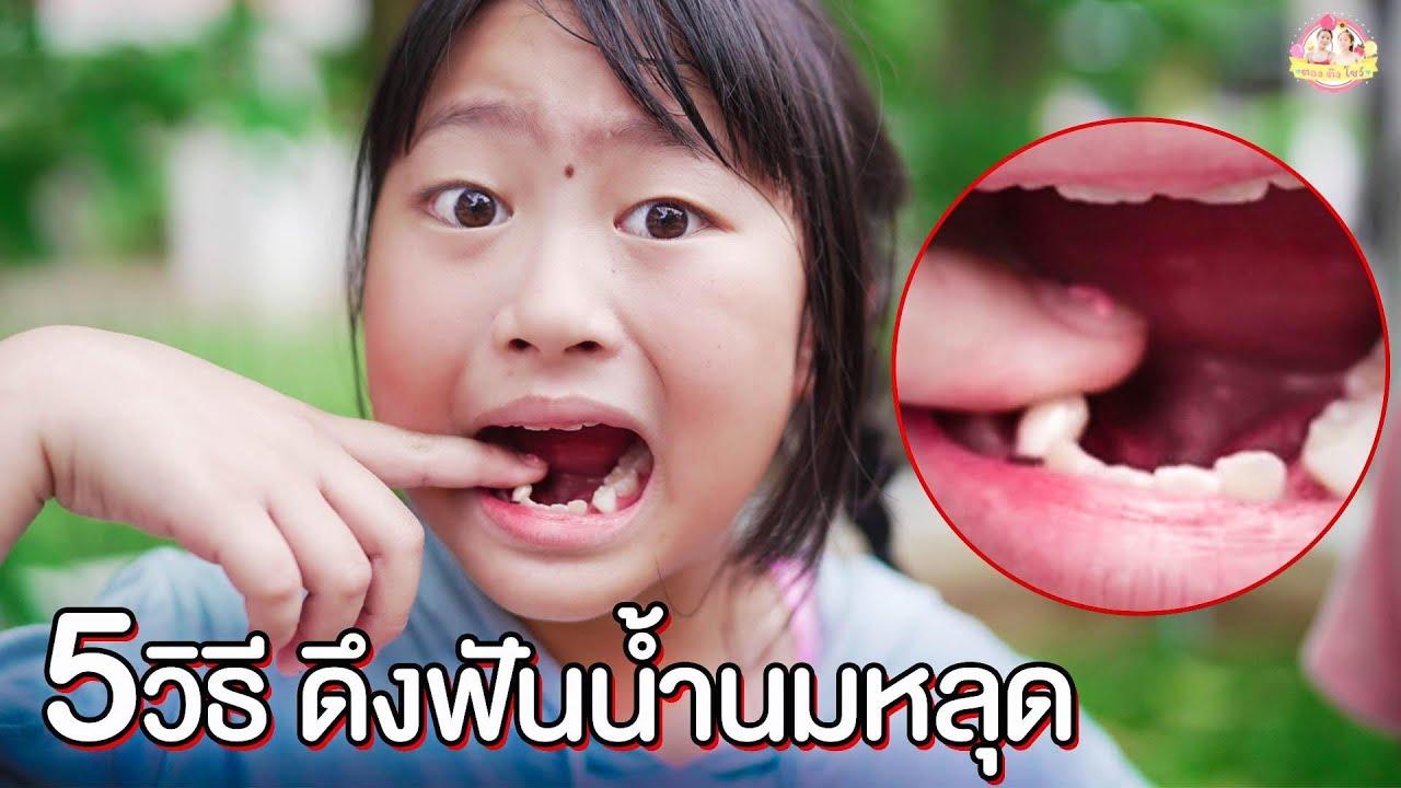 อิงติง วิ่งชนต้นไม้ฟันหลุด  5วิธีดึงฟันหลุดกินไอติม กัดน้ำแข็ง ❤ ตอง ติง โชว์ ❤