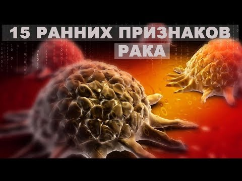ОНКОЛОГИЯ.15 РАННИХ ПРИЗНАКОВ