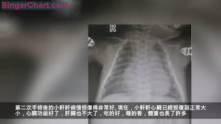 幼兒呼吸急促數日,檢查發現心臟、肝臟明顯增大!醫生:趕緊住院 專家簡介