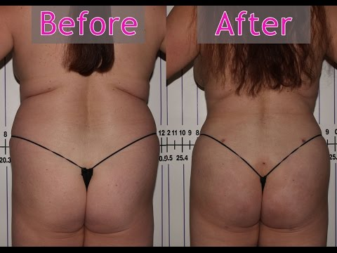 Lipo with fat transfer to Buttocks