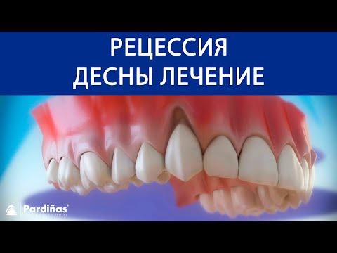 Болят десна передних нижних зубов
