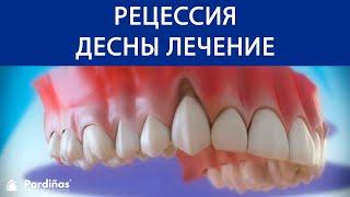 Pецессия десны лечение ©(, 2016-10-21T09:17:42.000Z)