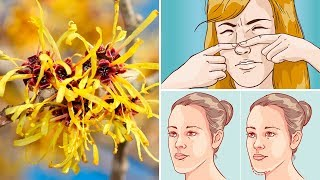 How to Use Witch Hazel to Clear Up Your Skin Fast