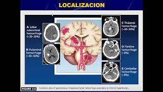 Fisiopatologia evento cerebrovascular
