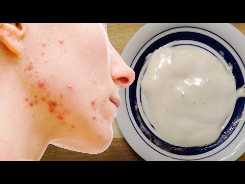 apply-this-baking-soda-and-apple-vinegar-mask-for-5-minutes-daily-and-watch-what-happened?