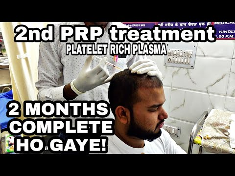 MY 2ND PRP DONE! || 2 MONTHS COMPLETE || HAIR TRANSPLANT IN INDIA
