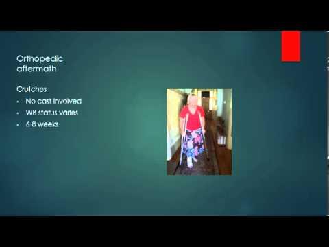 Prevention and Early Treatment of Legg-Calvé-Perthes Diseaseиз YouTube · Длительность: 3 мин1 с