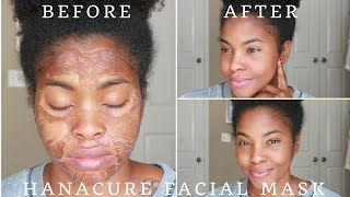 Hanacure Mask || Review and Demo || DOES IT WORK?