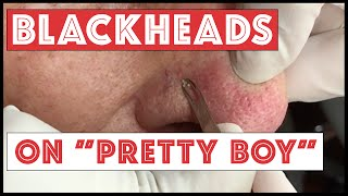 "Blackheads on ""Pretty Boy"""