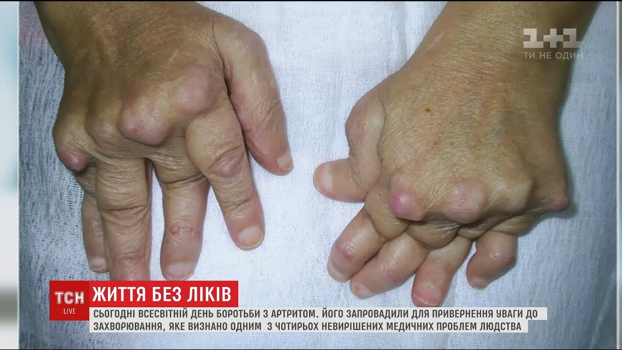 Ревматоїдний поліартрит