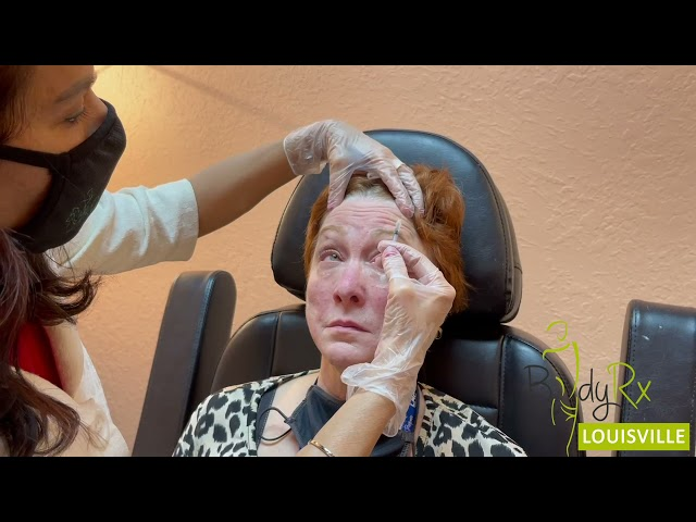 How many units of BOTOX for face | Botox treatment at BodyRx, Louisville KY