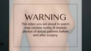 Dr. Richard Rand | Before & After Video: Breast Augmenation Case #112