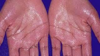 Hy guys... Jadi divideo ini Cara mengatasi keringat pada telapak tangan|MUDAH mungkin bisa mengatasi.