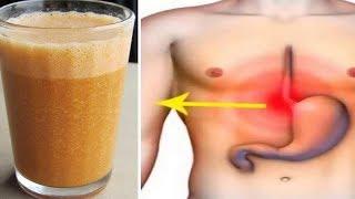 Beseitige Sodbrennnen und neutralisiere zu viel Magensäure mit diesen einfachen Mitteln