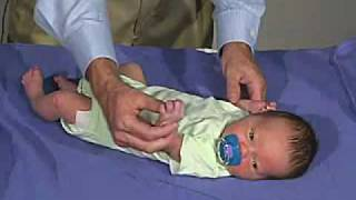 physical exam -Newborn Normal: Primitive Reflexes - Grasp