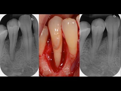 Periodontal Surgery with Regenerative Therapy