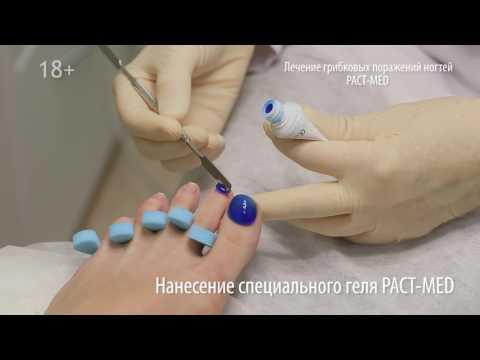 Лечение грибка ногтей; грибок ногтей самое эффективное